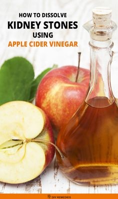 How Apple Cider Vinegar works to cure Kidney Stones Here are few best ways of using ACV for dissolving the kidney stones. Try any of the below-mentioned methods to prevent kidney stones and its symptoms. #KidneyStones #AppleCiderVinegar #ACV #CureKidneyStones