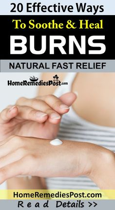 20 Remedies To Soothe & Heal Burns Naturally Natural Health Tips, Natural Detox, Natural Health Remedies, Natural Herbs, Boil Remedies, Types Of Burns, Home Remedies For Burns, Natural Antidepressant