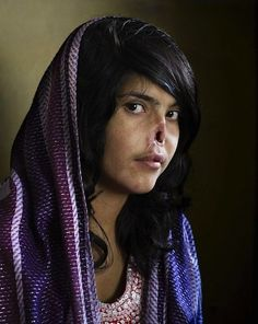 When 18-year-old Bibi Aisha was caught trying to escape an abusive marriage, her Taliban husband and father-in-law cut off her nose and ears and left her to die. Rescued by the U.S. military, she later appeared on the cover of Time magazine.
