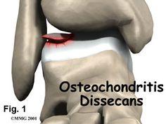 Surgery next week o_O Graphic of osteochondritis dissecans.