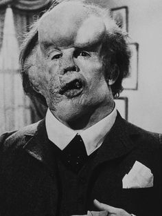 """""""The Elephant Man"""" movie still, John Hurt as John Merrick. David Lynch originally tried to design the makeup but backed off. The makeup for Hurt took seven to eight hours to apply each day and two hours to remove. Joseph Merrick, John Merrick, Twin Peaks, Man Movies, I Movie, Elephant Man, David Lynch Movies, Le Terrier, Hollywood Monsters"""