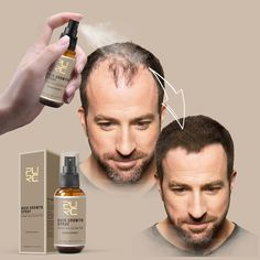 Sale Oil For Hair Loss, Anti Hair Loss, New Hair Growth, Healthy Hair Growth, Growth Oil, Natural Hair Loss Treatment, Sport Nutrition, Fast Hairstyles, Natural Hairstyles