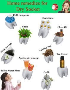 Remedies To Relief Pain What is dry socket? Cure tooth extraction pain with these home remedies, natural ways to prevent tooth pain. Tooth Extraction Aftercare, Tooth Extraction Healing, Natural Headache Remedies, Natural Pain Relief, Doterra, Wisdom Teeth Removal, Wisdom Teeth Food, Remedies For Tooth Ache, Home Remedies