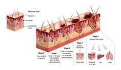 Melanoma's disease stage is determined by the thickness, depth of penetration and the degree to which the melanoma has spread to lymph nodes and distant sites in the body.