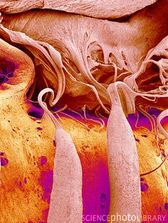 Heart valve and strings, colored SEM. This is the tricuspid valve (upper right), seen from the right ventricle of the heart