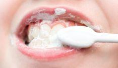 Notícias: Tratamentos naturais para cuidar dos dentes