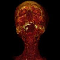 ARTICLE: Mummy Scans Reveal Clogged Arteries