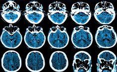 6 consejos para prevenir el Alzheimer: protege tu cerebro