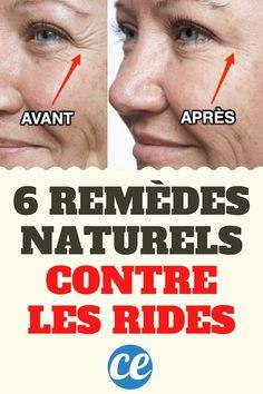 Huile Anti Ride, Anti Ride Naturel, Anti Aging, Creme Anti Rides, Rides Front, Healthy Skin Care, Healthy Life, Dull Skin, Cellulite