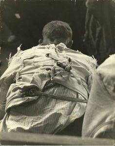 Pilgrim State Hospital: an Abandoned Psychiatric Hospital in Brentwood, NY Mental Asylum, Insane Asylum, Mental Health Care, Mental Health Problems, Pilgrim State Hospital, Psychiatric Hospital, Medical History, Mental Illness, Paranormal