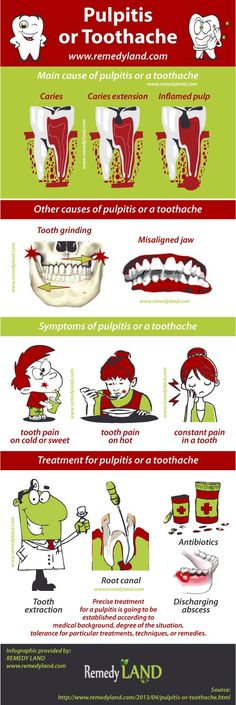 Pulpitis or toothache result from an inflammatory reaction of the pulp inside the tooth. A pulpitis or toothache typically comes after damage to the tooth.