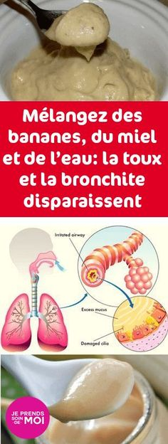 Water, Honey & Bananas: Bronchitis & Cough Will Disappear! Mix Water, Honey & Bananas: Bronchitis & Cough Will Disappear! Mix Water, Honey & Bananas: Bronchitis & Cough Will Disappear! Cold And Cough Remedies, Flu Remedies, Health Remedies, Home Remedies, Natural Remedies, Bronchitis Remedies, Healthy Drinks, Healthy Tips, Healthy Protein