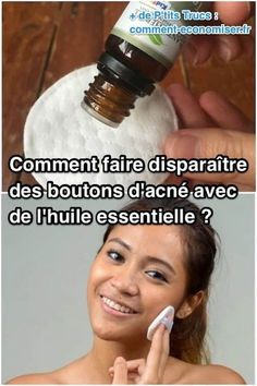 How to Disappear Acne Buttons With Essential Oil . Beauty Care, Diy Beauty, Beauty Hacks, Bio Oil Uses, How To Disappear, Acne Oil, Beauty Tips For Face, Mouthwash, Good Skin