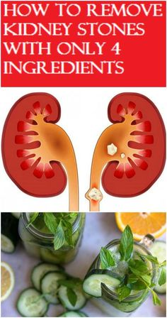 How To Remove Kidney Stones With Only 4 Ingredients