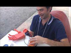 Startup die bionische armen bouwt met 3D-printer wint James Dyson Award - http://visionandrobotics.nl/2015/08/25/startup-die-bionische-armen-bouwt-met-3d-printer-wint-james-dyson-award/
