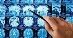 Study: Cannabidiol (CBD) Found In The Cannabis Plant May Treat Brain Cancer Symptoms In Medical Marijuana Patients Tumor Cerebral, Brain Tumor, Mri Brain, Chemo Brain, Cerebral Cortex, Brain Science, Medical Science, Troubles Bipolaires, Aphasia