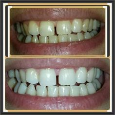 5 days with Sorisos Whitening Kit Whitening Kit