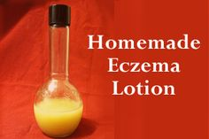 Homemade Eczema Lotion - Honey Sweetened