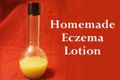 Homemade Eczema Lotion - Honey Sweetened