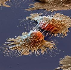 APOBEC, a defense protein that causes cancer