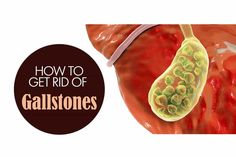 How to Get Rid of Gallstones