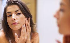 How I Finally Got My Cystic Acne Plague Under Control