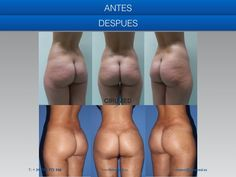 Supercharged buttock implants. Anatomical cohesive gel buttock implants, placed inside the  muscle with additional fatgrafting