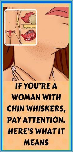 IF YOU�RE A WOMAN WITH CHIN WHISKERS, PAY ATTENTION. HERE�S WHAT IT MEANS Symptoms Of Polycystic Ovaries, Polycystic Ovary Syndrome, Help Losing Weight, Lose Weight, Weight Loss, What Causes Pcos, Stress And Health, Mental Health, Health Planner