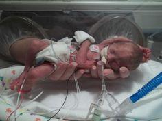 A Week-by-Week Premature Baby Guide- 23 Weeks through 25 Weeks Gestation: Baby Liam born at 25 weeks