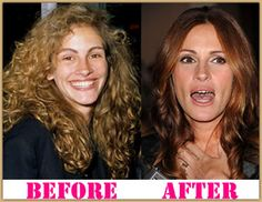 Julia Roberts Plastic Surgery Before And After Botox
