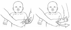 Range of motion exercises help keep your baby's joints and muscles loose and easy to move. An exercise program is planned for each child's needs. Finger Flexion, Erb Palsy, School Ot, Pediatric Occupational Therapy, Make A Game, Baby Massage, Helping Hands, Childrens Hospital, Exercise For Kids