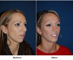 Facial Implant, Chin Implant, Rhinoplasty, Surgery, Brows, Hoop Earrings, Eyebrows, Dip Brow