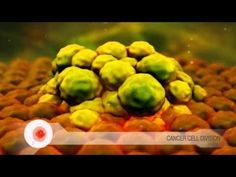 Cancer: Unregulated cell growth Amazing animation of cancerous cell growth compared to normal cell growth. Includes cell cycle animations.