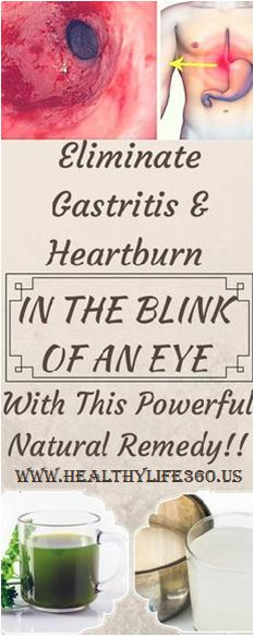 Eliminate Gastritis and Heartburn in the Blink of an Eye with This Powerful Natural Remedy!