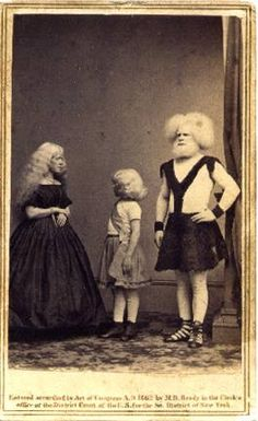 Rudolph Lucasie, wife & daughter were discovered at a fair in Amsterdam by P. Barnum in Little is known about them except for Barnum's hyperbole regarding their albinism. Old Circus, Vintage Circus, Circus Acts, Showman Movie, Pt Barnum, Human Oddities, Famous Portraits, The Greatest Showman, Human Condition