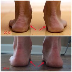 Two year long case study demonstrating an increase in arch height from running in minimalist shoes.