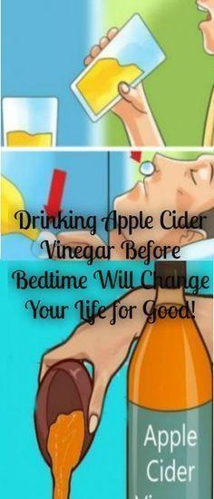 Apple Cider Vinegar Before Bedtime Will Change Your Life for Good! Drinking Apple Cider Vinegar Before Bedtime Will Change Your Life for Good!Drinking Apple Cider Vinegar Before Bedtime Will Change Your Life for Good! Natural Cures, Natural Health, Health Remedies, Home Remedies, Arthritis Remedies, Herbal Remedies, Apple Cider Vinegar Remedies, Vinegar Uses, Natural Medicine