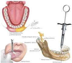 NP dental injection - Google Search