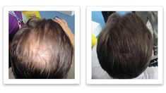 Widening part line? here is one easy solution Fuller Hair, Thinning Hair, Quites, Hair Loss, Woman, Watch, Easy, Projects, Log Projects