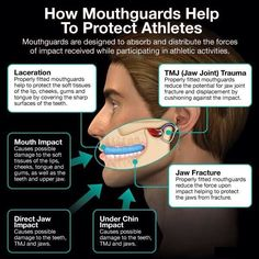 It's been posted here before, but far too important not to share again. See how important mouthguards are when protecting athletes! #dental   #oralhealth   #mouthguards