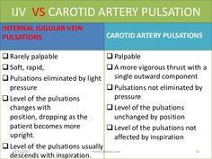 internal jugular vs carotid pulsations - Google Search