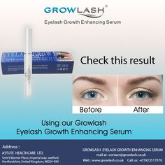 See the result of our recommended #Eyelash #Growth #Enhancing #Serum