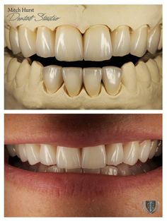 1348 Best dental-cosmetics images in 2019   Dental cosmetics