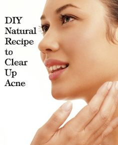 DIY Natural Recipe to Clear up Acne {seen on Dr. Oz} Ingredients Needed: *6 Aspirin (uncoated) *1 tsp Honey, I prefer organic *Water