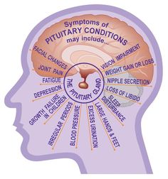 The Thyroid Gland And Metabolic Functioning People who have unexplained weight gain may have an underactive thyroid. When the thyroid is not functioning Pituitary Gland Tumor, Cushing Disease, Adrenal Support, Nursing Mnemonics, Chiari Malformation, Brain Tumor, Endocrine System, Hormone Imbalance, Anatomy And Physiology