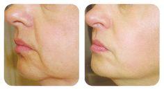 Con mi Salud y Mas: 2 Ingrediente diga adiós a las arrugas y flacidez de la piel facial con esta sencilla receta. Es sorprendente.!