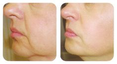 2 Ingrediente diga adiós a las arrugas y flacidez de la piel facial con esta sencilla receta. Es sorprendente.! - Sentirsebien.us