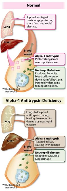 Alpha-1 Antitrypsin Deficiency. AR mutation in polymorphic protease inhibitor gene (Pi). Accumulation of abnormally folded protein in epr of hepatocytes (Like Mallory hyaline but PAS + and diastase neg). PiZZ genotype the most severe associated with hcc.