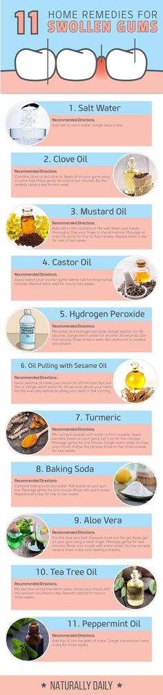 11 Home Remedies for Swollen Gums for Instant Relief – Naturally Daily health/health tips/nutrition and ealth/health tips for women/home remedies/ Home Remedies For Fever, Home Health Remedies, Holistic Remedies, Homeopathic Remedies, Natural Health Remedies, Natural Cures, Natural Healing, Swollen Gums Remedy, Gum Health