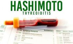 Bei Hashimoto Thyreoiditis können ganzheitliche Massnahmen zu einem Verschwinden der Symptome oder sogar zu einem Stillstand der Krankheit führen.